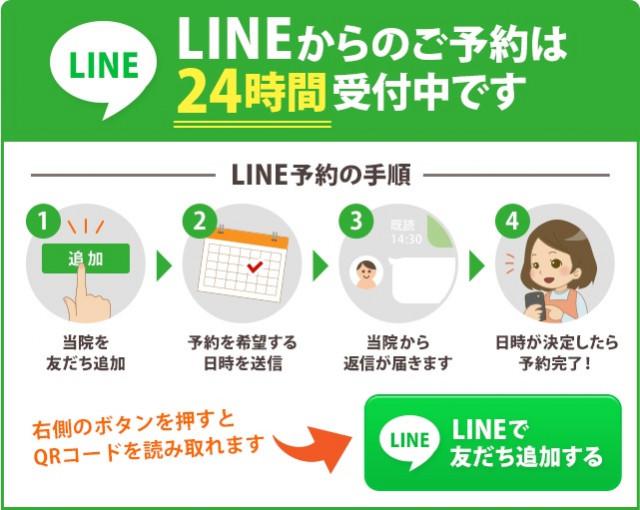 LINEでの予約ボタンの画像