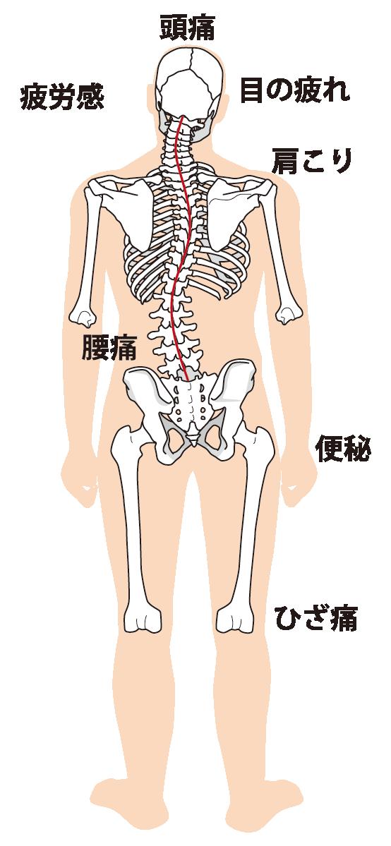頭痛と背骨の歪みの図