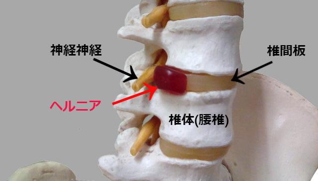 椎間板ヘルニアの説明写真