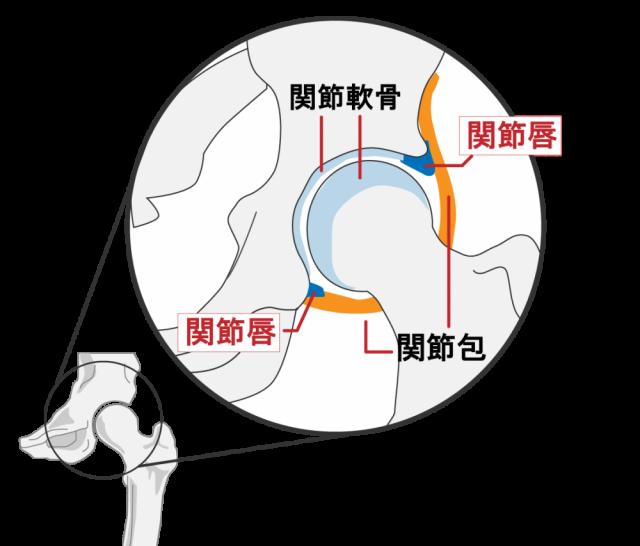 股関節痛の説明の図