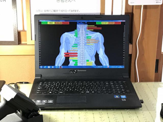 ②-C科学的な測定器による背骨の両脇の温度差(バーグラフ)