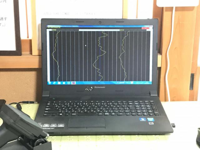 ②-B科学的な測定器による背骨の両脇の温度差(ライングラフ)