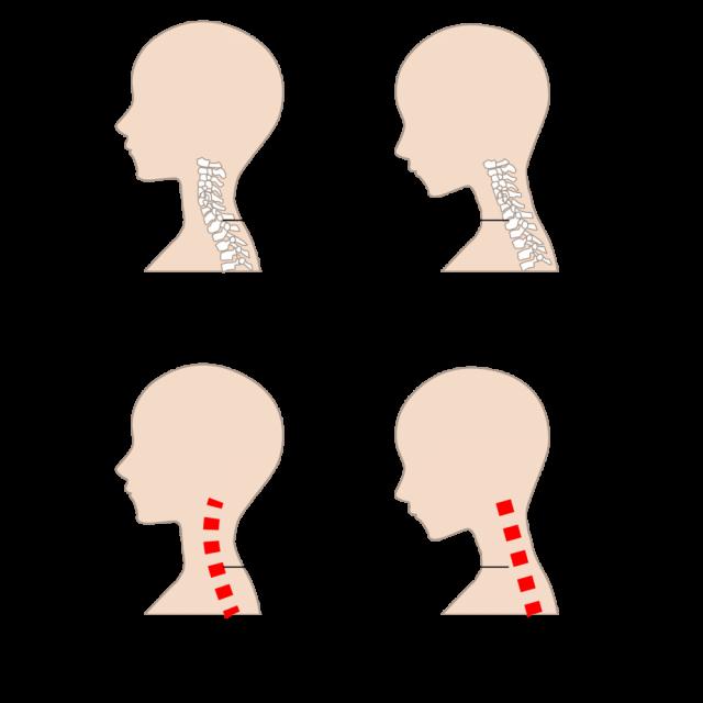 ストレートネックのイメージ図